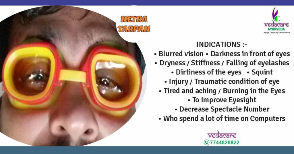 Netra-Tarpan-Netra-Basti-ayurvedic-treatment-Eye