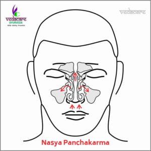 Nasya-panchakarma-clinic-in-aundh-baner-pune